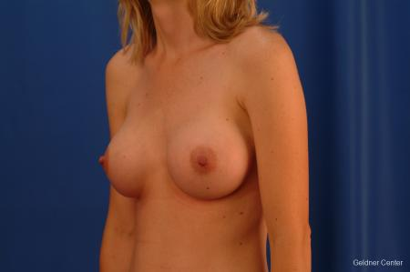 Breast Augmentation Streeterville, Chicago 2530 -  After Image 4