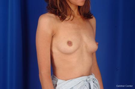 Breast Lift Chicago 2296 - Before Image 3
