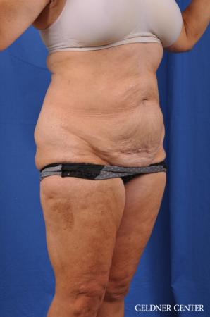 Liposuction: Patient 34 - Before Image 2