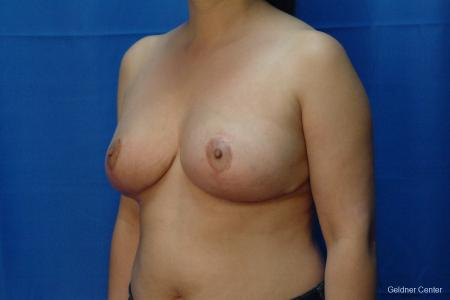Chicago Breast Reduction 2416 -  After Image 4