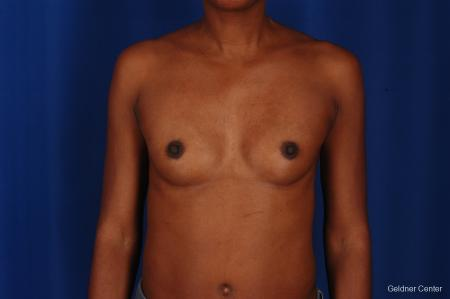 Chicago Breast Augmentation 2293 - Before Image 1