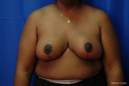 Chicago Breast Reduction 2406 - After Image