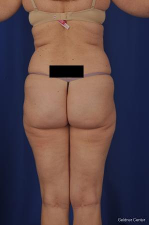 Vaser lipo patient 2069 before and after photos - Before Image 3