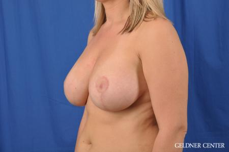 Breast Lift: Patient 40 - After Image 4