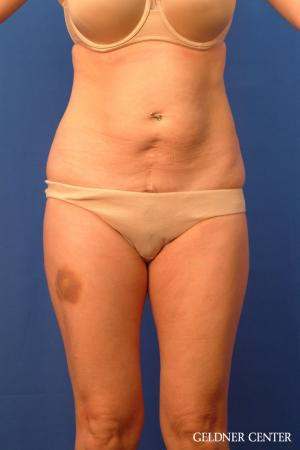 Tummy Tuck: Patient 36 - Before Image 1