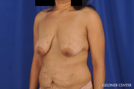 Breast Lift: Patient 49 - Before and After Image 4