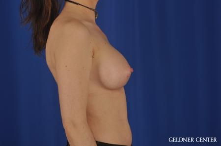 Breast Augmentation Hinsdale, Chicago 5579 -  After Image 3