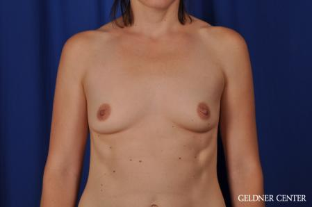 Breast Augmentation: Patient 170 - Before Image 1