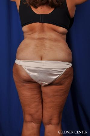 Lipoabdominoplasty: Patient 4 - After Image 3