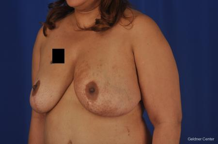 Chicago Breast Reduction 2375 -  After Image 4