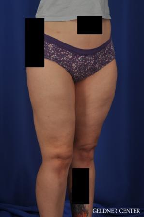 Liposuction: Patient 44 - After Image 2