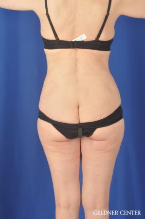 Liposuction: Patient 33 - After 4