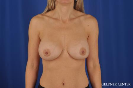 Breast Augmentation Lake Shore Dr, Chicago 8748 -  After Image 1
