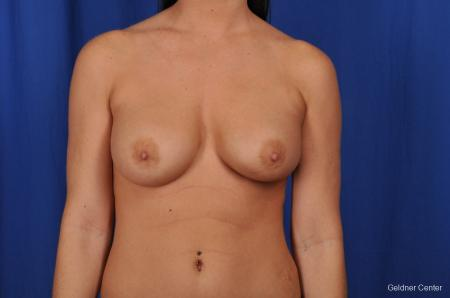 Breast Augmentation Streeterville, Chicago 2071 - After Image