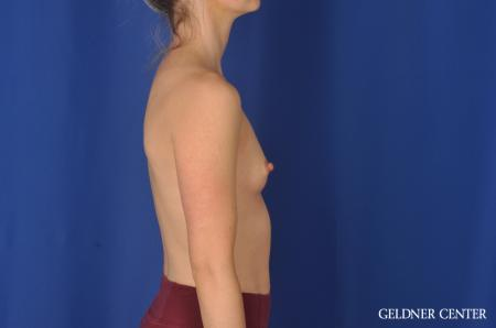 Breast Augmentation Hinsdale, Chicago 11860 - Before Image 3