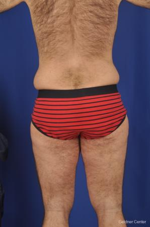 Abdominoplasty For Men: Patient 1 - Before and After Image 4
