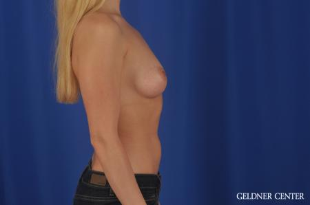 Breast Augmentation Lake Shore Dr, Chicago 4293 - Before Image 3