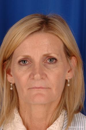 Chicago Brow Lift 2285 - Before Image