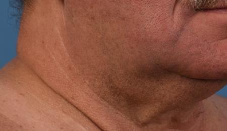 Skinpen For Men: Patient 4 - Before 1