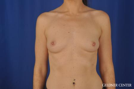 Breast Augmentation Hinsdale, Chicago 5579 - Before Image 1