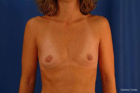 Chicago Breast Augmentation 2442 - Before Image 1