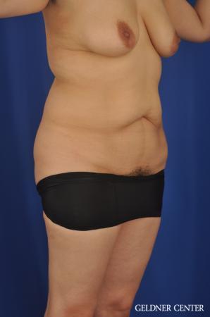 Lipoabdominoplasty: Patient 7 - Before Image 2