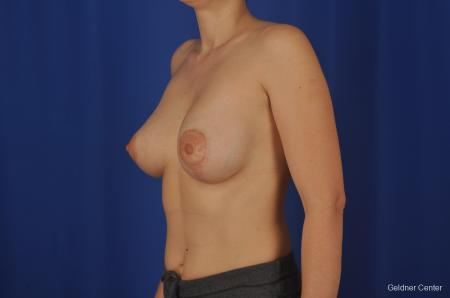 Chicago Complex Breast Augmentation 2306 -  After Image 3