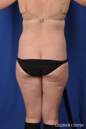 Liposuction: Patient 48 - Before 4