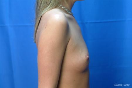 Chicago Breast Augmentation 2431 - Before Image 2