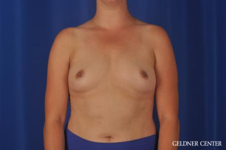 Breast Augmentation: Patient 180 - Before Image 1