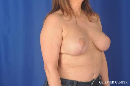 Breast Lift Hinsdale, Chicago 11863 -  After Image 2