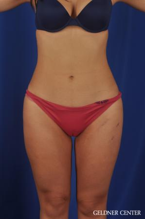 Liposuction: Patient 22 - After Image 1