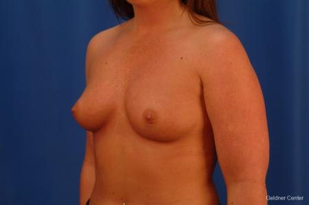 Chicago Breast Augmentation 2636 - Before Image 4