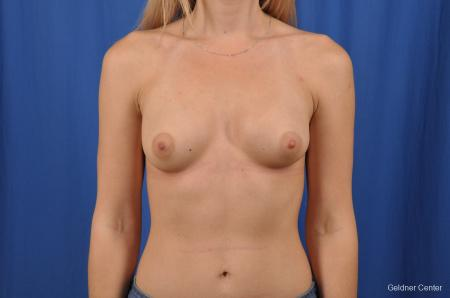 Breast Augmentation: Patient 149 - After Image 1