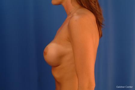 Complex Breast Augmentation Streeterville, Chicago 2620 - Before Image 4
