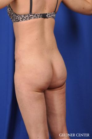Liposuction: Patient 27 - Before Image 2