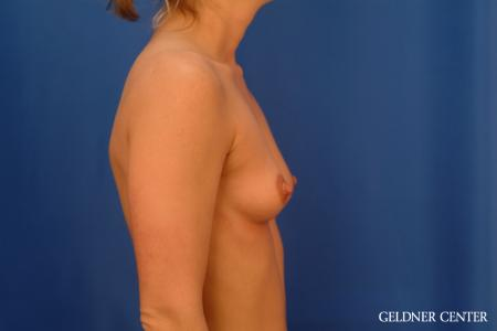 Breast Augmentation: Patient 181 - Before Image 3