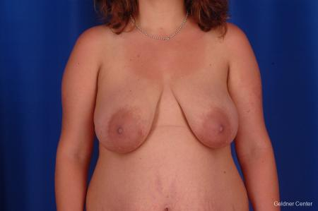 Breast Lift Streeterville, Chicago 2301 - Before Image 1