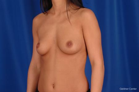 Breast Augmentation Lake Shore Dr, Chicago 2402 - Before and After Image 4