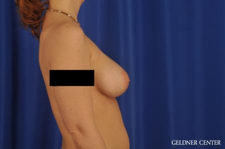 Breast Augmentation: Patient 171 - After Image 3