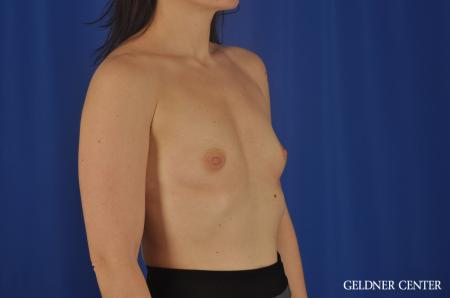 Chicago Breast Augmentation 8760 - Before Image 3