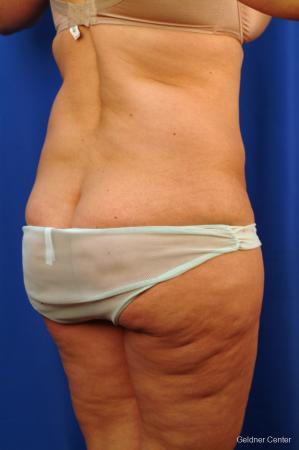Liposuction: Patient 10 - Before Image 3