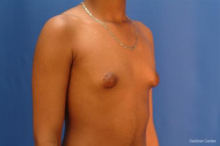 Gynecomastia: Patient 5 - Before Image 3