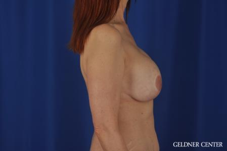Complex Breast Augmentation: Patient 37 - Before Image 3