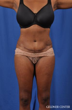 Abdominoplasty: Patient 6 - After Image 1