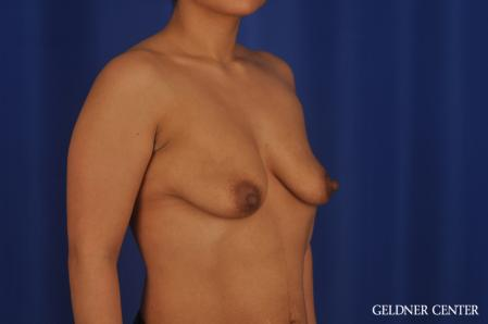 Breast Lift: Patient 55 - Before Image 2