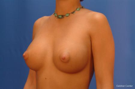 Breast Augmentation Hinsdale, Chicago 2438 -  After Image 4