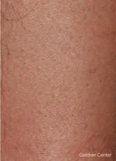 Hair reduction patient 2317 before and after photos - After Image