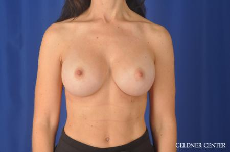 Complex Breast Augmentation: Patient 33 - After Image 1
