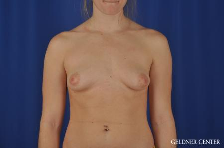 Chicago Breast Augmentation 5468 - Before Image 1
